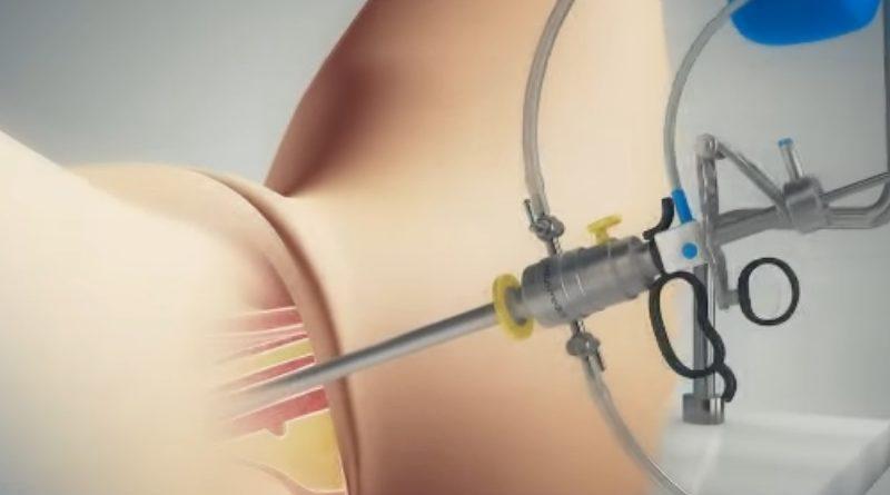 Histeroscopia